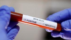 Koronavirüs aşısı en erken 20 ayda hazırlanabilecek