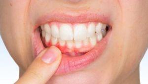 Diş eti kanaması neden olur kan damarlarının artması neden oluyor