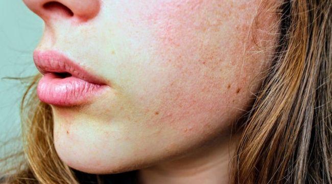 Beslenme eksikliği belirtileri kuru bir cildiniz varsa...