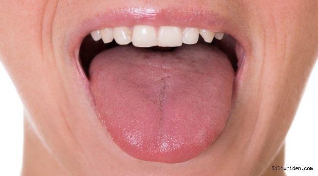 Dilin yapısına göre hastalık belirtileri neler rengi soluksa...