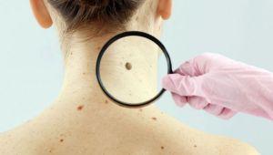 Cilt kanserine neden olan 12 risk faktörü